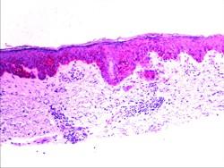 Immunohistochemistry Slide: HMB-45 Stain